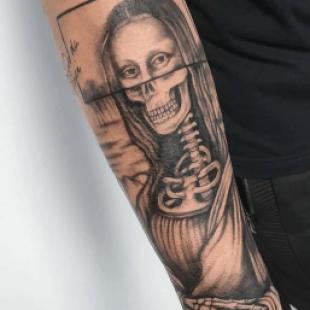 Extirpar tatuajes